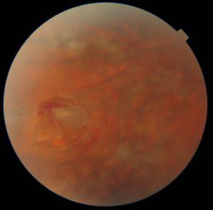 Qual o tratamento para descolamento de retina?