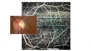 angiografia por tomografia de coerencia optica dr Rony Preti