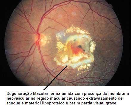 Fig. 2. Degeneração Macular forma úmida com membrana neovascular de coróide