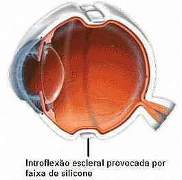Fig. 3. Descolamento de Retina sendo tratado com introflexão escleral