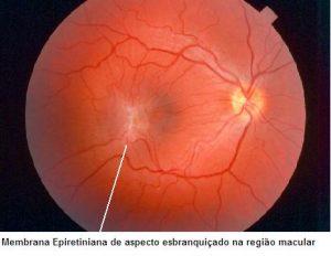 Fig. 1. Foto de fundo do olho mostrando a membrana epiretiniana