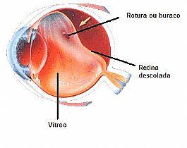 Fig. 1. Descolamento de retina regmatogênico