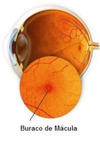 Fig. 1. Ilustração do Buraco de Mácula no fundo do olho